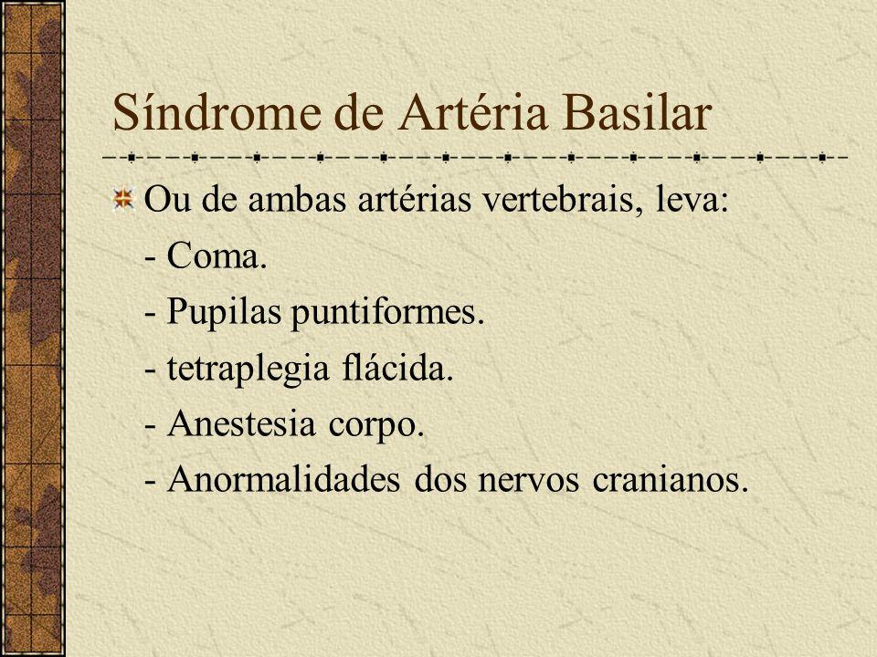Síndrome Da Artéria Cerebelar Inferior Posterior - Hemiplegia contralateral. - Hipoestesia de face ipsilateral (5). - Paresia do palato mole:disfagia