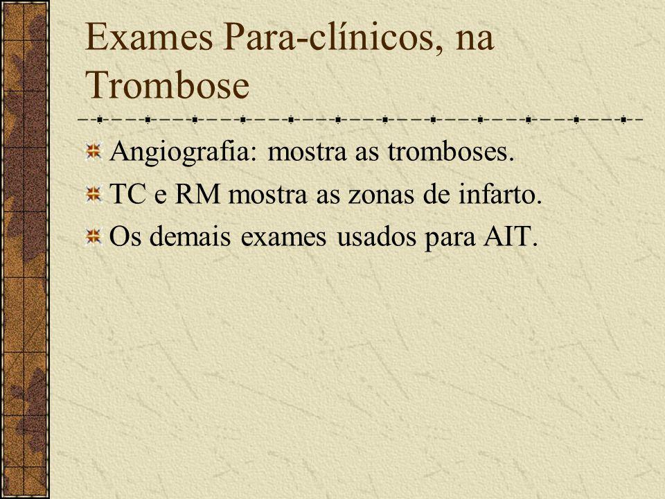 Síndrome da Artéria Cerebelar Inferior Anterior Mostra: - Vertigens, náuseas, vômitos, nistagmo, ataxia de membro ipsilateral, anestesia contralateral