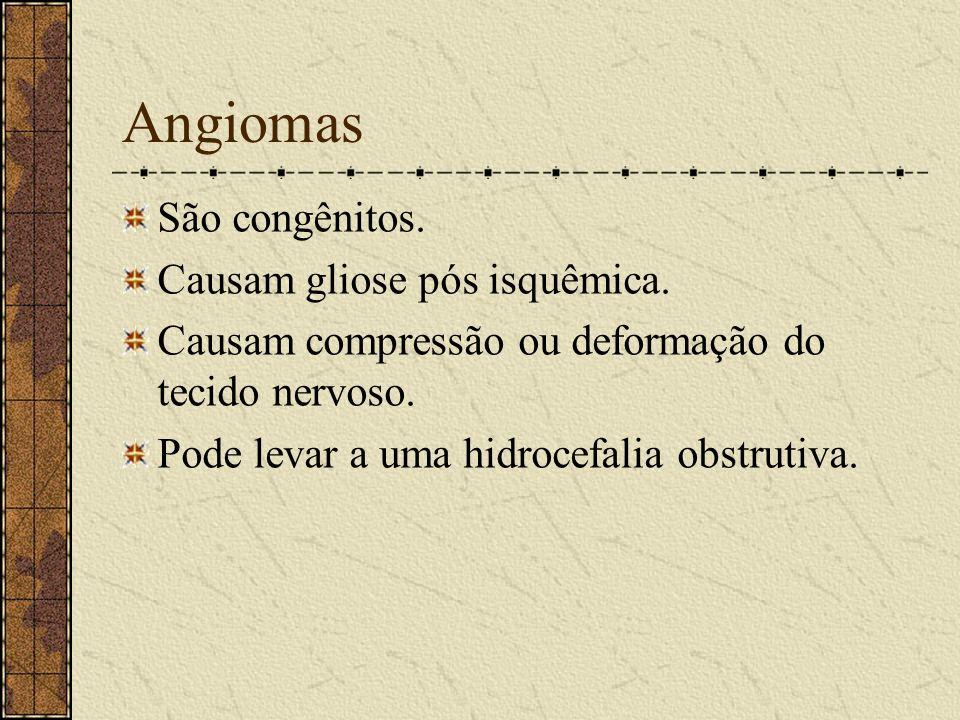 Aneurismas Comprimem estruturas (Ex: 3 par). Provocam espasmos arteriais ( 4 a 14 dias após a ruptura). Os espasmos levam a isquemias. O sangue pode l