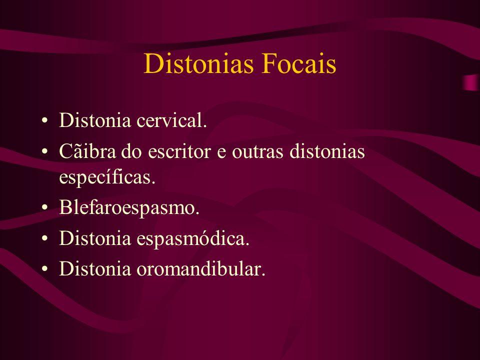 Distonias Distonia é a contração involuntárias dos músculos agonistas e antagonistas. Podem ser: Focais Generalizadas