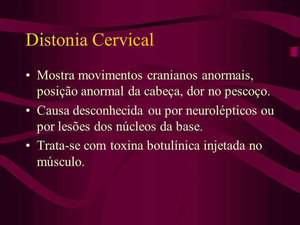Distonias Focais Distonia cervical. Cãibra do escritor e outras distonias específicas. Blefaroespasmo. Distonia espasmódica. Distonia oromandibular.