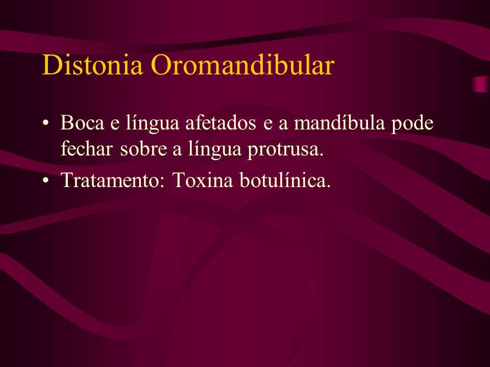 Distonia Espasmódica Fala variável com timbre agudo e abafado, podendo ser trêmula. Tratamento: Toxina botulínica.