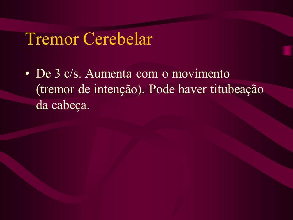 Tremor Fisiológico De 8 a 12 c/s. Sempre presente e estimulado pela ansiedade, hipertireoidismo, certos medicamentos (beta-agonistas e simpaticomiméti