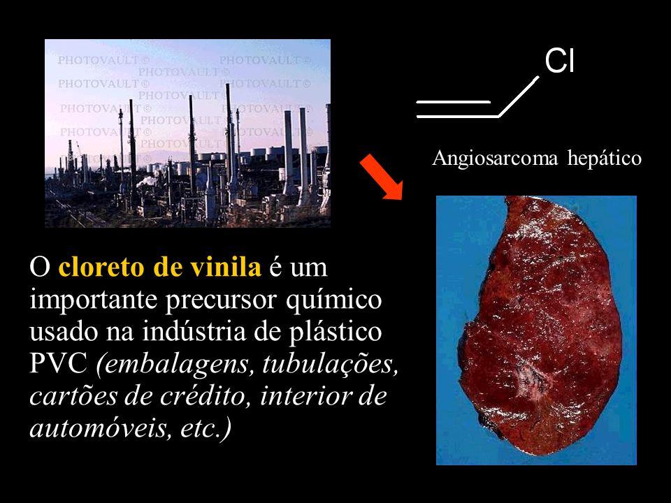 Angiosarcoma hepático O cloreto de vinila é um importante precursor químico usado na indústria de plástico PVC (embalagens, tubulações, cartões de cré