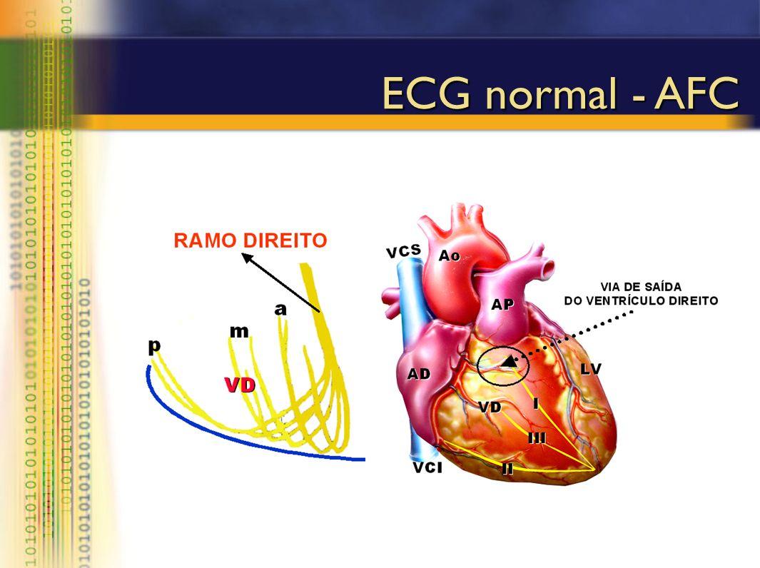 ECG normal - AFC