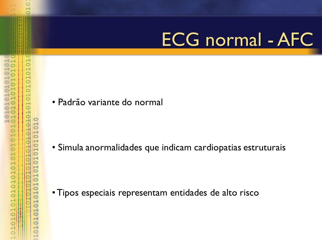 Padrão variante do normal Simula anormalidades que indicam cardiopatias estruturais Tipos especiais representam entidades de alto risco