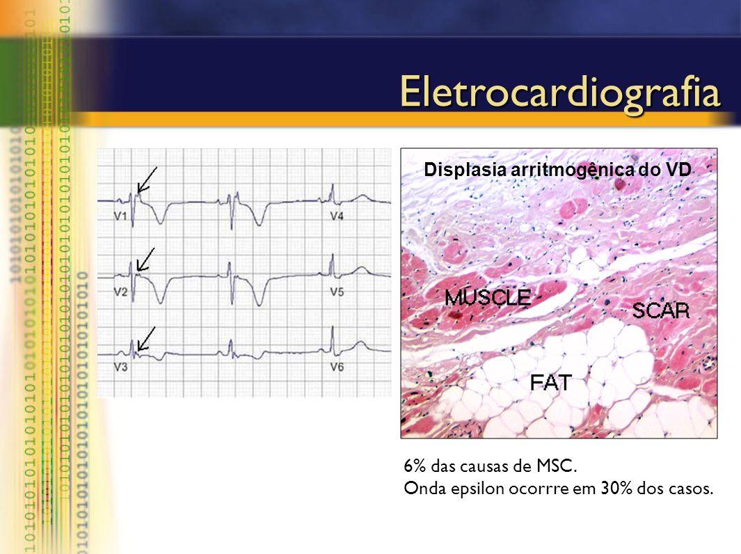 Eletrocardiografia Displasia arritmogênica do VD 6% das causas de MSC. Onda epsilon ocorrre em 30% dos casos.