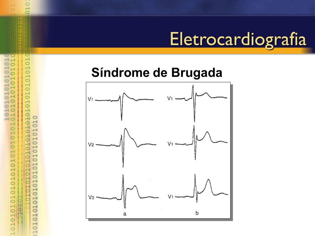 Eletrocardiografia Síndrome de Brugada
