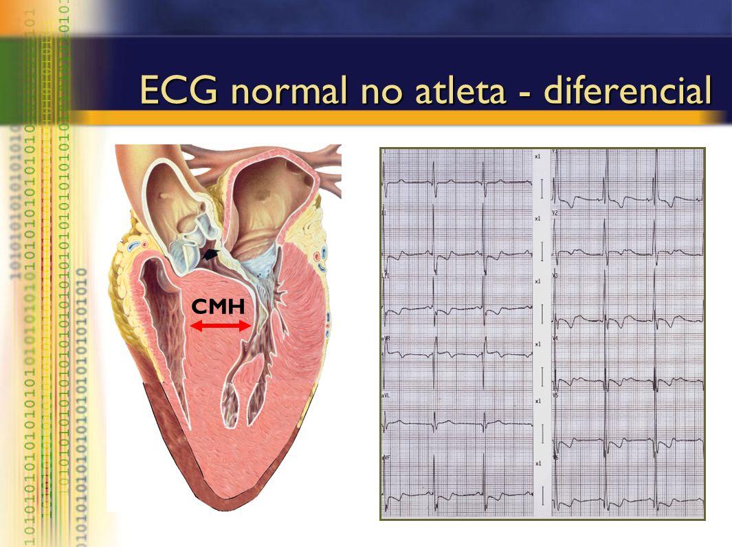 ECG normal no atleta - diferencial CMH