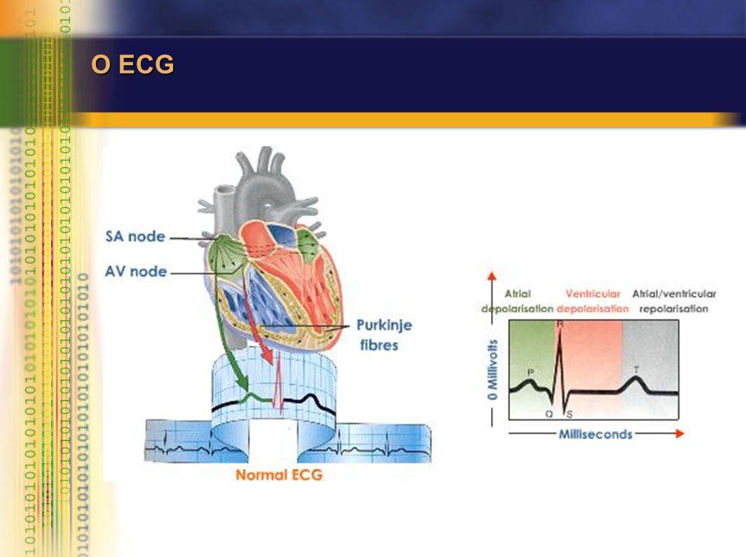 O ECG NORMAL RITMO MORFOLOGIA Sinusal PQRST FormaForma OrientaçãoOrientação AmplitudeAmplitude DuraçãoDuração Variantes do normal Arritmia sinusalArritmia sinusal Pausas sinusais (< 1,8s)Pausas sinusais (< 1,8s) BAVIBAVI Mobitz 1Mobitz 1 Ritmo JuncionalRitmo Juncional