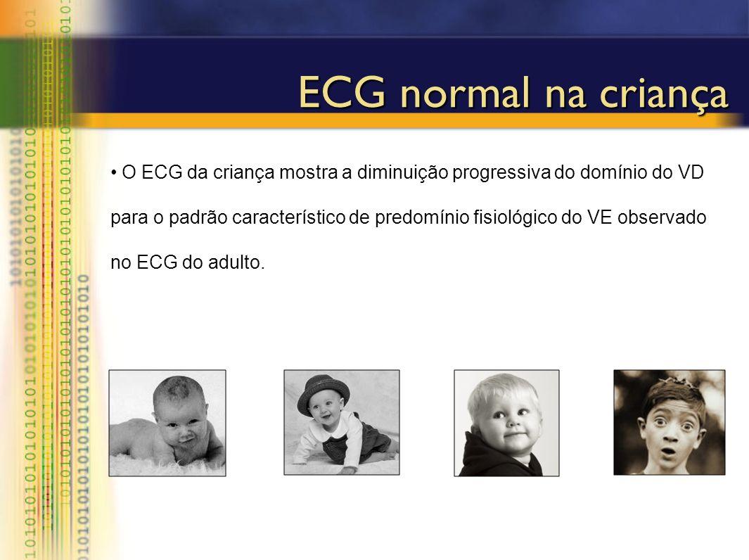 O ECG da criança mostra a diminuição progressiva do domínio do VD para o padrão característico de predomínio fisiológico do VE observado no ECG do adu