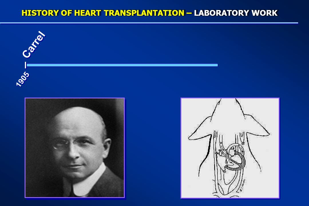 HISTORY OF HEART TRANSPLANTATION – LABORATORY WORK Carrel 1905