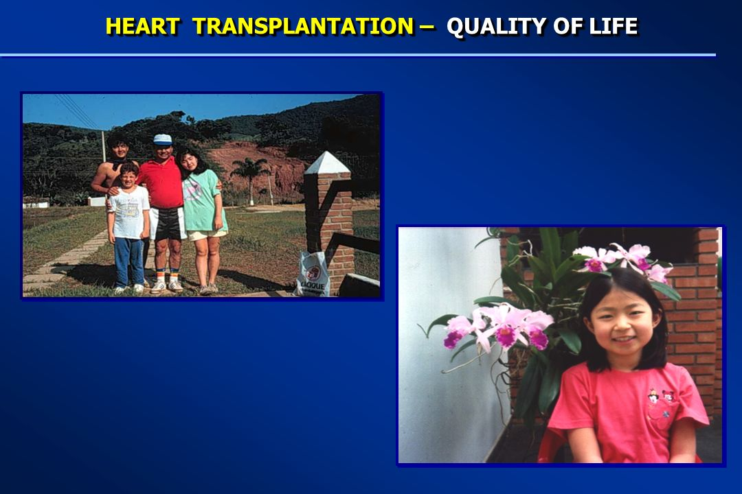 HEART TRANSPLANTATION – QUALITY OF LIFE