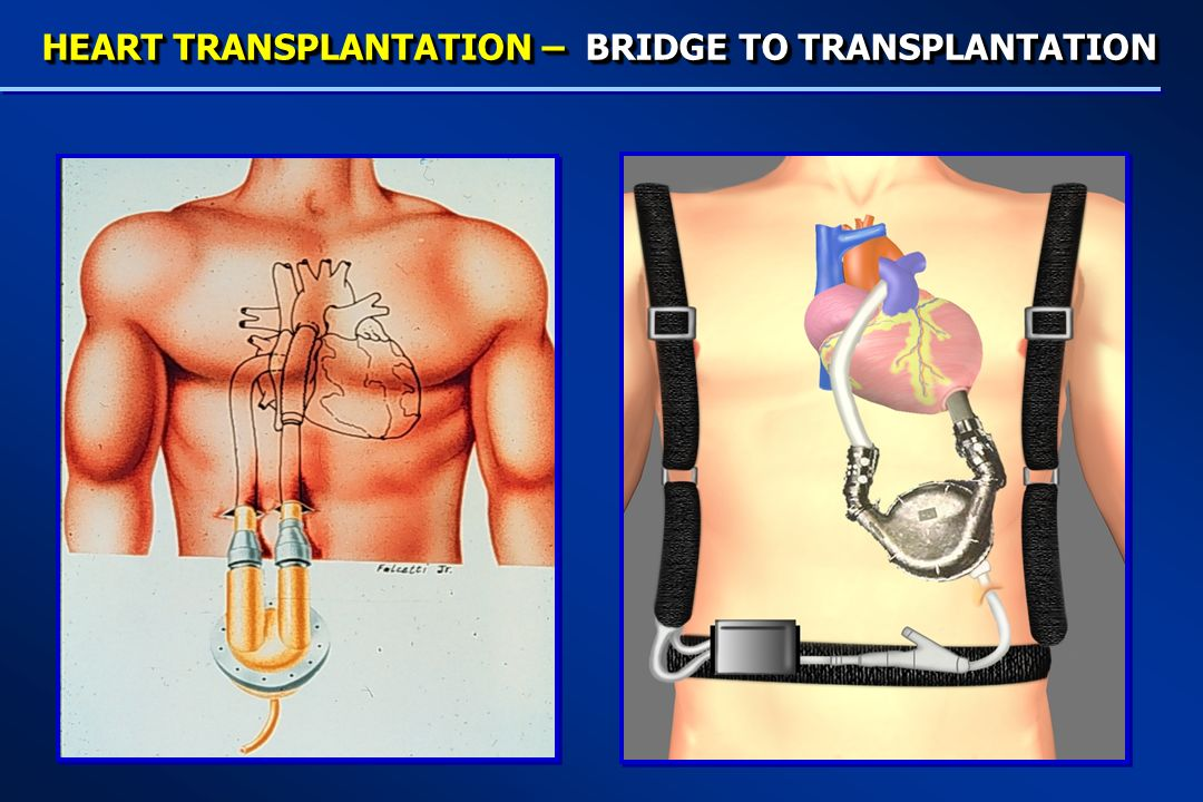 HEART TRANSPLANTATION – BRIDGE TO TRANSPLANTATION