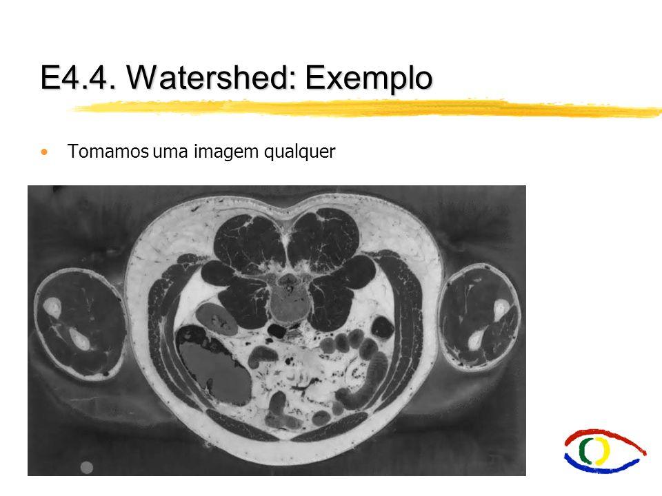 E4.4. Watershed: Exemplo Tomamos uma imagem qualquer