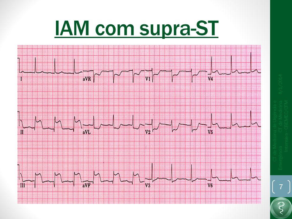 IAM com supra-ST 8/1/2014 CT de Medicina de Urgência e Emergência CT de Medicina Intensiva - CREMEC/CFM 7