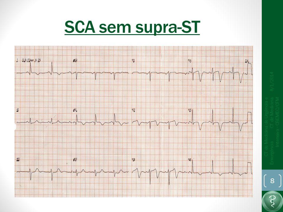 SCA sem supra-ST 8/1/2014 CT de Medicina de Urgência e Emergência CT de Medicina Intensiva - CREMEC/CFM 8
