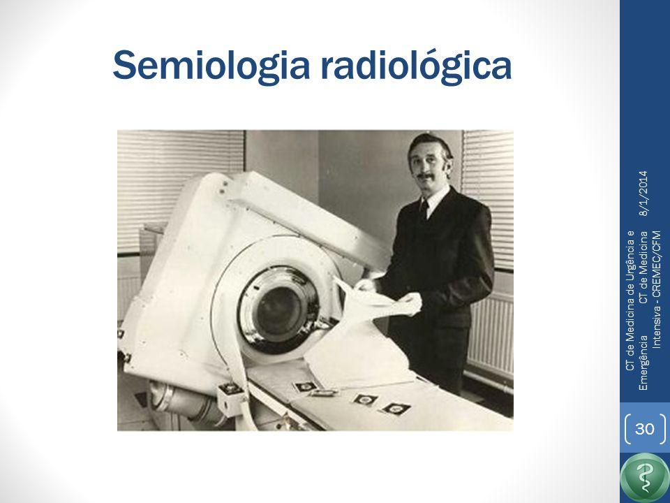 Semiologia radiológica 8/1/2014 CT de Medicina de Urgência e Emergência CT de Medicina Intensiva - CREMEC/CFM 31 Tomografia de crânio: Acessível Rápida Suficiente