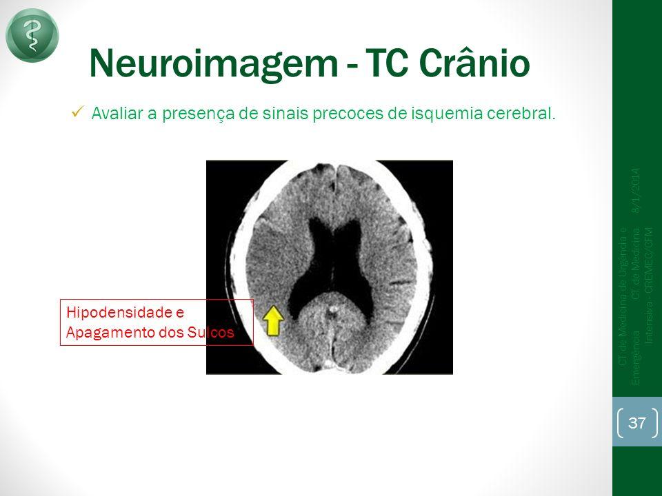 Neuroimagem - TC Crânio Avaliar a presença de sinais precoces de isquemia cerebral.