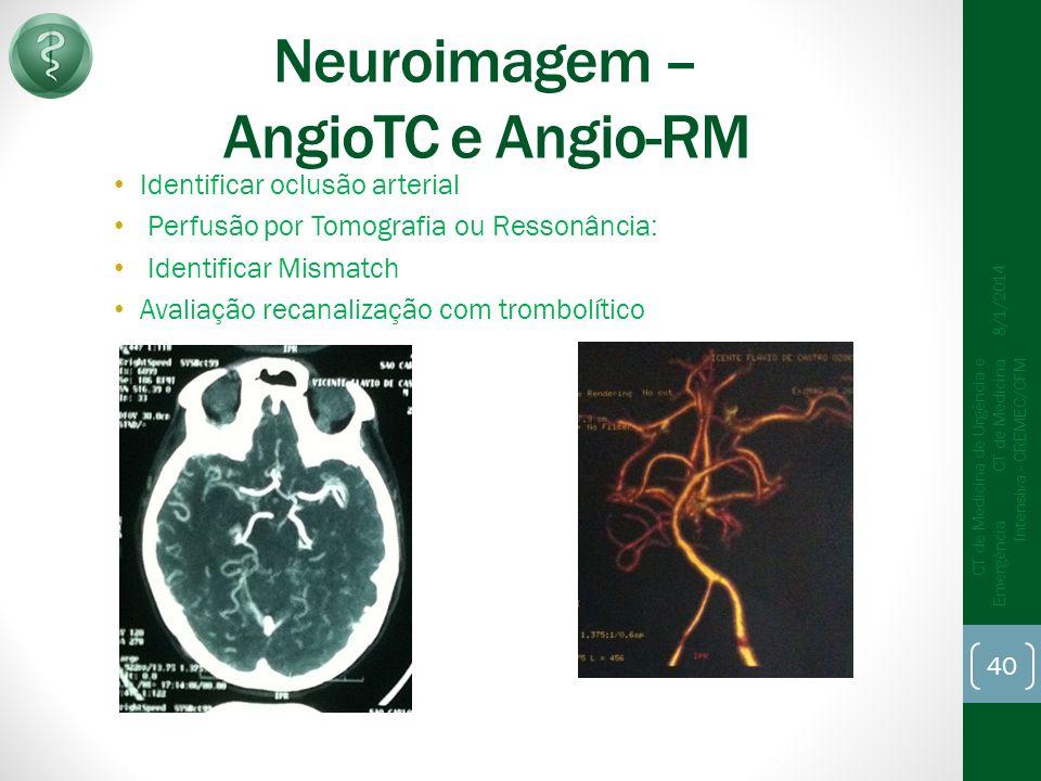 Neuroimagem – AngioTC e Angio-RM Identificar oclusão arterial Perfusão por Tomografia ou Ressonância: Identificar Mismatch Avaliação recanalização com trombolítico 8/1/2014 CT de Medicina de Urgência e Emergência CT de Medicina Intensiva - CREMEC/CFM 40