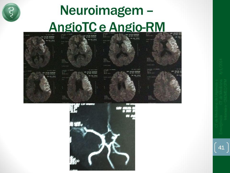 Neuroimagem – AngioTC e Angio-RM 8/1/2014 CT de Medicina de Urgência e Emergência CT de Medicina Intensiva - CREMEC/CFM 41
