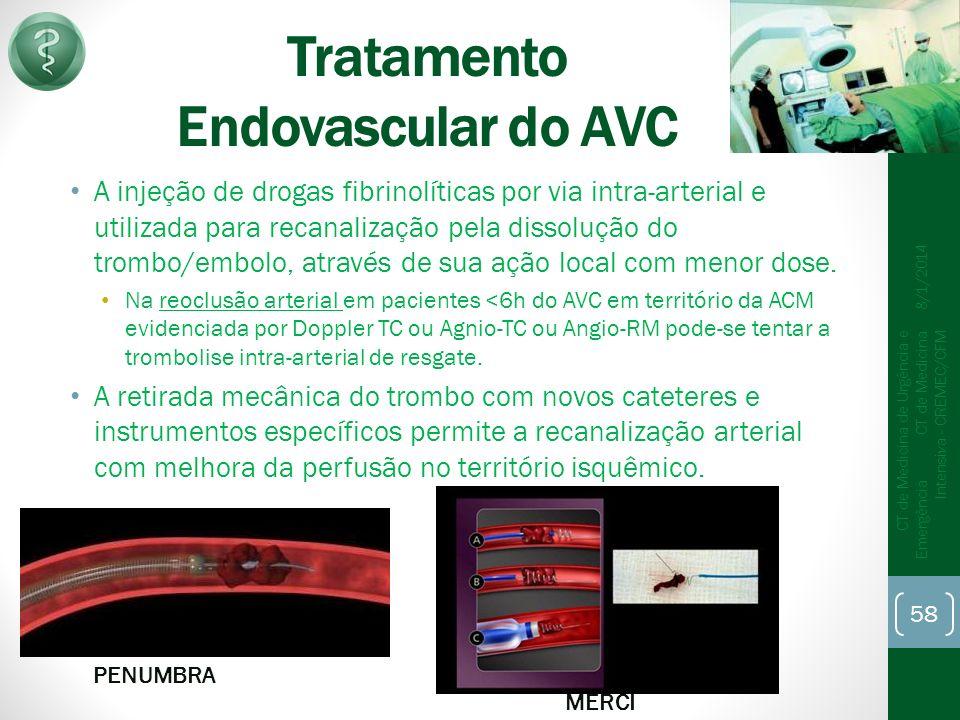 Tratamento Endovascular do AVC A injeção de drogas fibrinolíticas por via intra-arterial e utilizada para recanalização pela dissolução do trombo/embolo, através de sua ação local com menor dose.