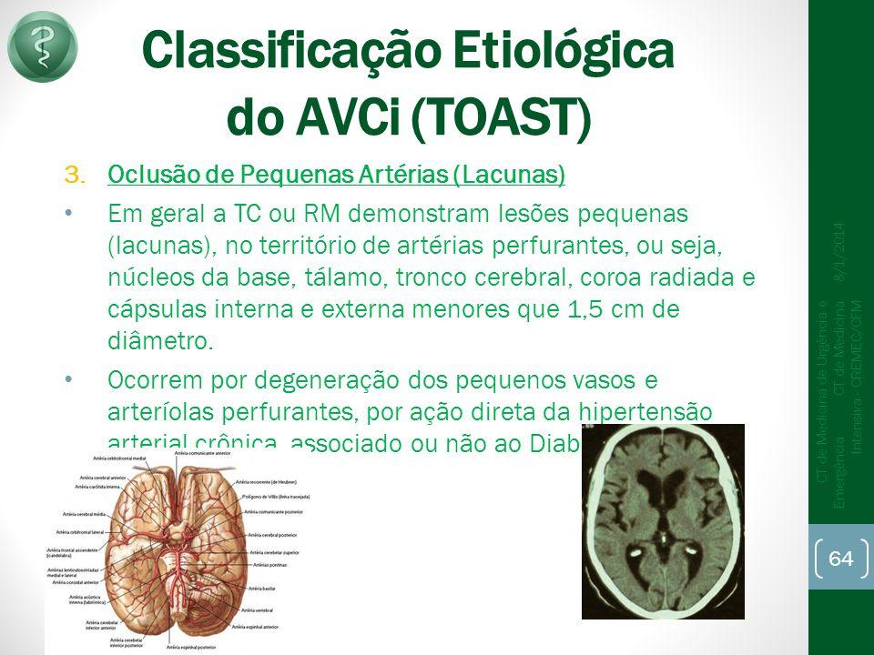 Classificação Etiológica do AVCi (TOAST) 3.Oclusão de Pequenas Artérias (Lacunas) Em geral a TC ou RM demonstram lesões pequenas (lacunas), no território de artérias perfurantes, ou seja, núcleos da base, tálamo, tronco cerebral, coroa radiada e cápsulas interna e externa menores que 1,5 cm de diâmetro.