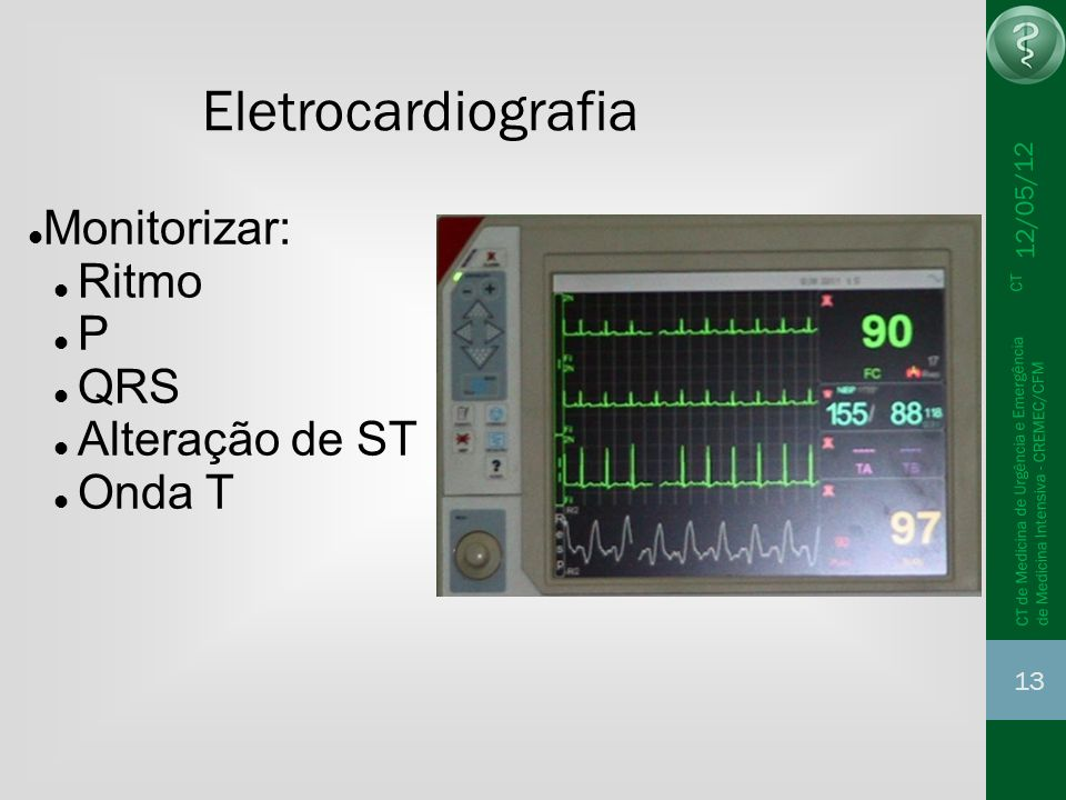12/05/12 13 CT de Medicina de Urgência e Emergência CT de Medicina Intensiva - CREMEC/CFM Eletrocardiografia Monitorizar: Ritmo P QRS Alteração de ST