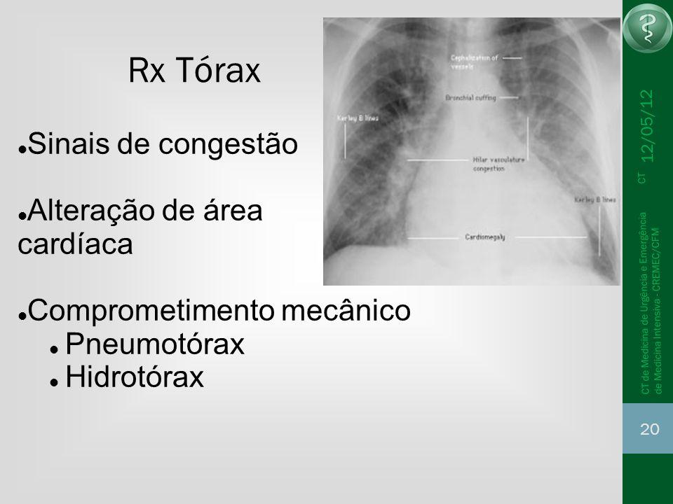 12/05/12 20 CT de Medicina de Urgência e Emergência CT de Medicina Intensiva - CREMEC/CFM Rx Tórax Sinais de congestão Alteração de área cardíaca Comp