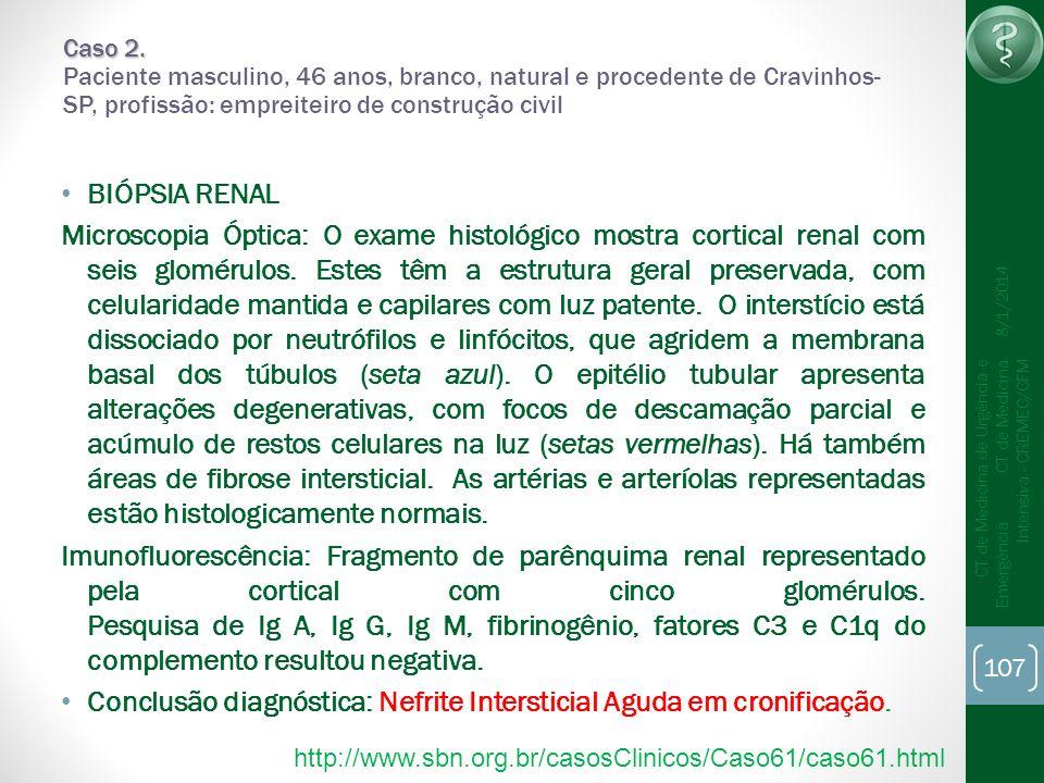 107 CT de Medicina de Urgência e Emergência CT de Medicina Intensiva - CREMEC/CFM 8/1/2014 Caso 2. Caso 2. Paciente masculino, 46 anos, branco, natura