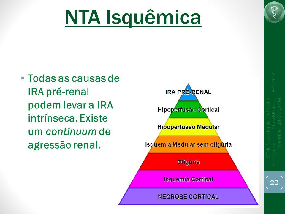 20 CT de Medicina de Urgência e Emergência CT de Medicina Intensiva - CREMEC/CFM 8/1/2014 NTA Isquêmica Todas as causas de IRA pré-renal podem levar a