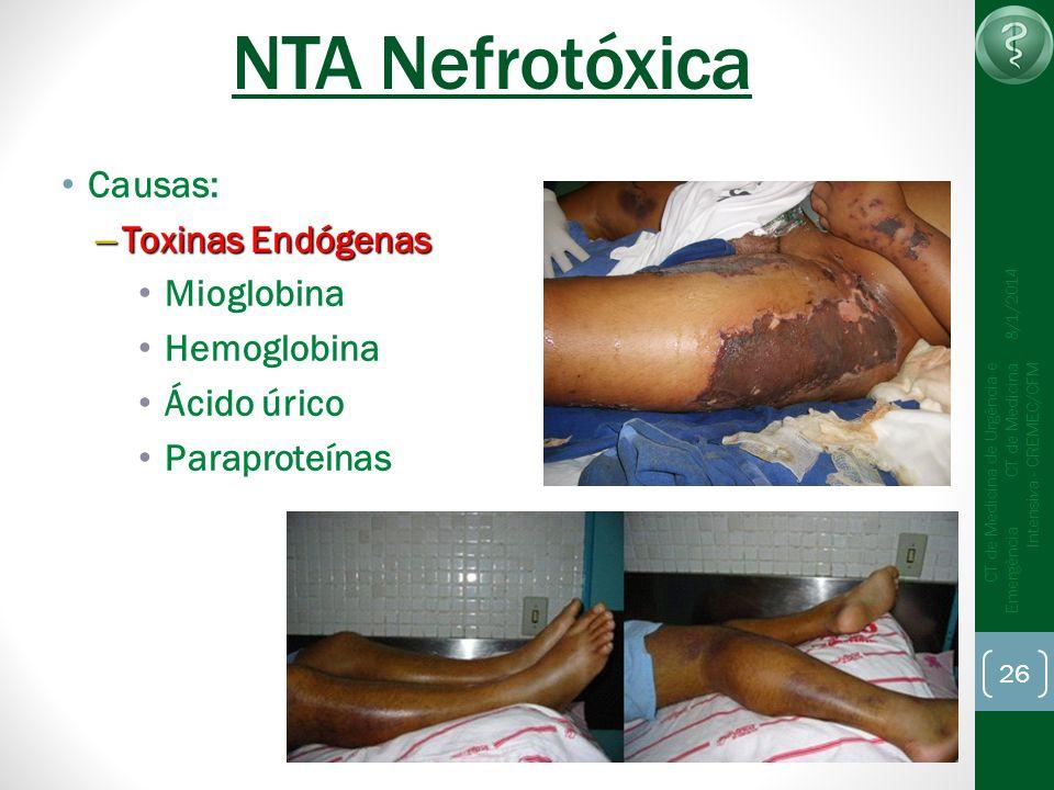 26 CT de Medicina de Urgência e Emergência CT de Medicina Intensiva - CREMEC/CFM 8/1/2014 NTA Nefrotóxica Causas: – Toxinas Endógenas Mioglobina Hemog
