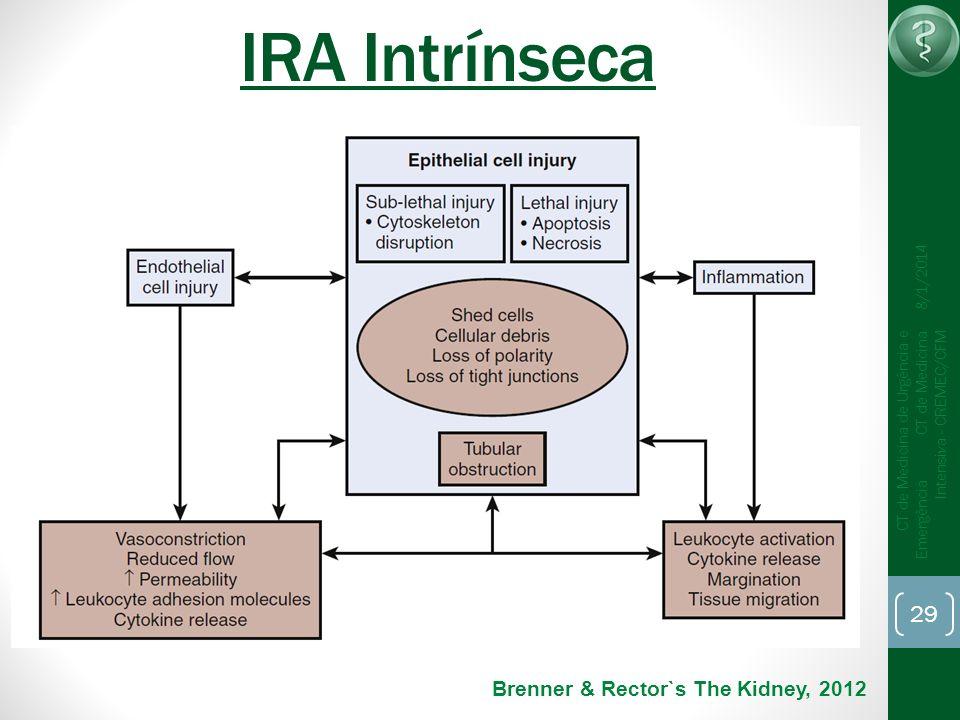 29 CT de Medicina de Urgência e Emergência CT de Medicina Intensiva - CREMEC/CFM 8/1/2014 IRA Intrínseca Brenner & Rector`s The Kidney, 2012