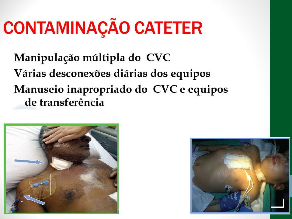 CONTAMINAÇÃO CATETER