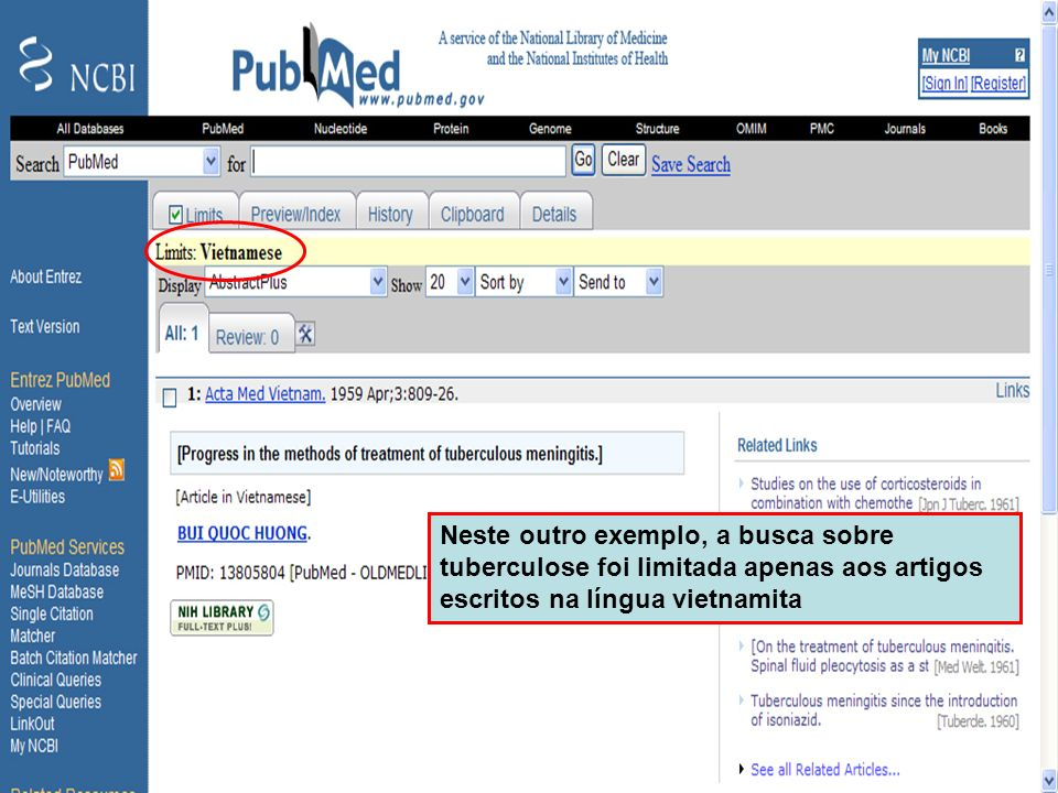 Limit by Vietnamese Neste outro exemplo, a busca sobre tuberculose foi limitada apenas aos artigos escritos na língua vietnamita