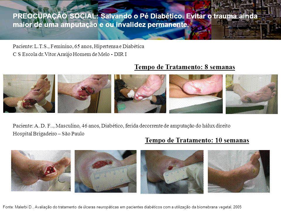 Paciente: L.T.S., Feminino, 65 anos, Hipertensa e Diabética C S Escola dr.Vitor Araújo Homem de Melo - DIR I Tempo de Tratamento: 8 semanas PREOCUPAÇÃO SOCIAL: Salvando o Pé Diabético.