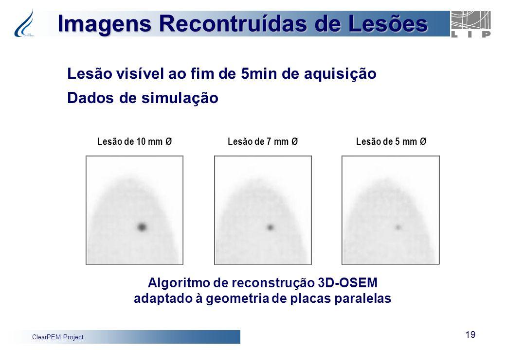 ClearPEM Project 19 Lesão visível ao fim de 5min de aquisição Dados de simulação Imagens Recontruídas de Lesões Lesão de 7 mm ØLesão de 10 mm ØLesão d