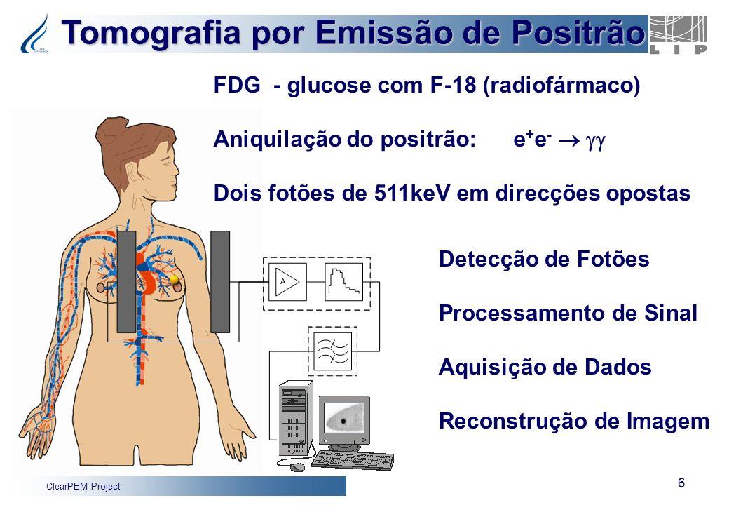 ClearPEM Project 6 Fluorine-18 Fluordeoxyglucose (FDG) Tomografia por Emissão de Positrão Detecção de Fotões Processamento de Sinal Aquisição de Dados