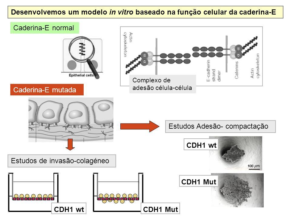 Caderina-E normal Caderina-E mutada Desenvolvemos um modelo in vitro baseado na função celular da caderina-E CDH1 wt 100 m Estudos Adesão- compactação