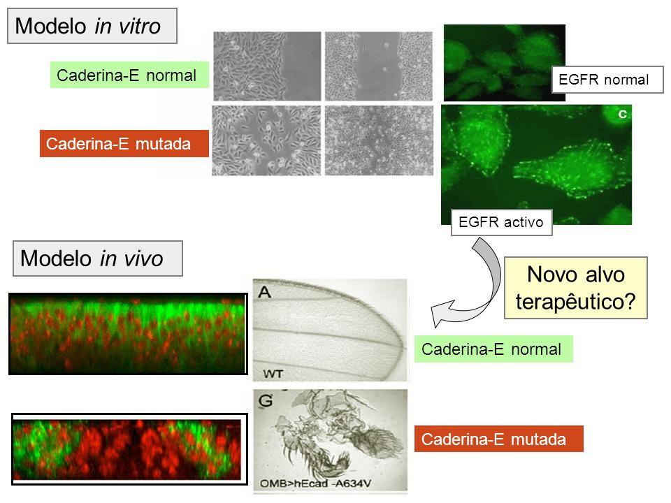 Caderina-E normal Caderina-E mutada EGFR activo EGFR normal Modelo in vivo Caderina-E normal Caderina-E mutada Novo alvo terapêutico? Modelo in vitro