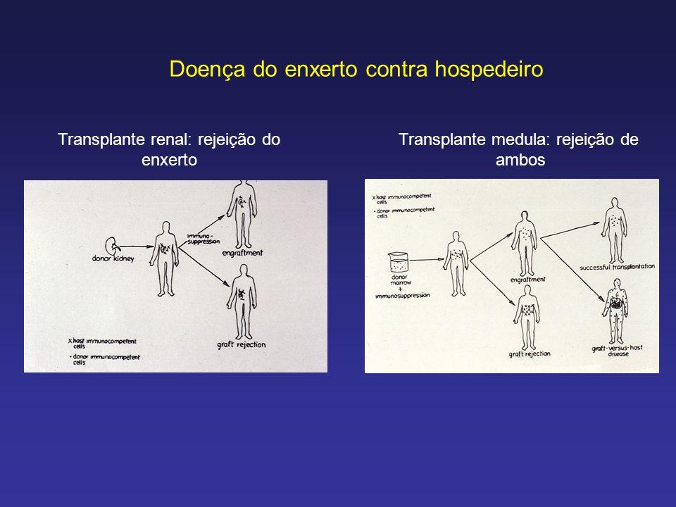 Doença do enxerto contra hospedeiro Transplante renal: rejeição do enxerto Transplante medula: rejeição de ambos