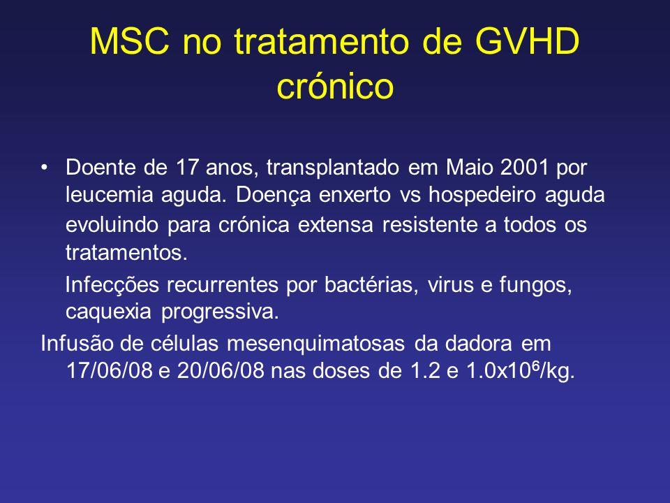 MSC no tratamento de GVHD crónico Doente de 17 anos, transplantado em Maio 2001 por leucemia aguda. Doença enxerto vs hospedeiro aguda evoluindo para