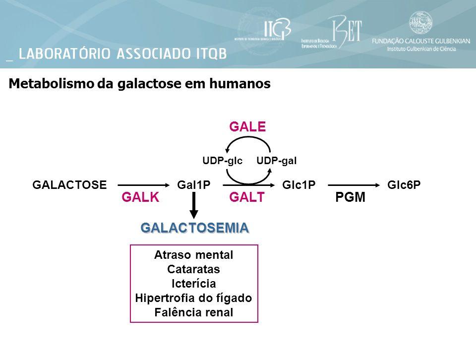 Metabolismo da galactose em humanos GALACTOSEGal1PGlc1PGlc6P GALKGALT UDP-galUDP-glc PGM GALE GALACTOSEMIA Atraso mental Cataratas Icterícia Hipertrof