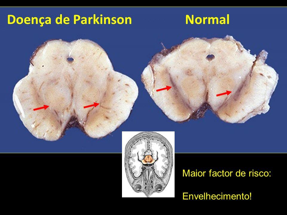 Doença de ParkinsonNormal Maior factor de risco: Envelhecimento!