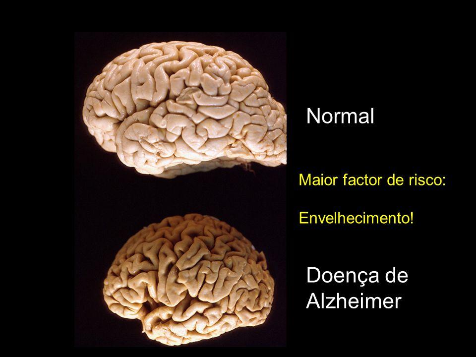 Normal Doença de Alzheimer Maior factor de risco: Envelhecimento!