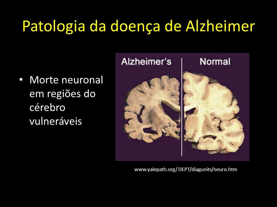 Doença de Alzheimer >100 mil milhões de dolares/ano só nos EUA Actualmente - 24 milhões de pessoas por todo o mundo; em 2040 – 84 milhões.