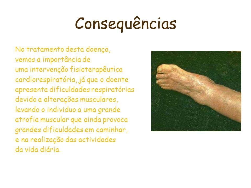 Consequências No tratamento desta doença, vemos a importância de uma intervenção fisioterapêutica cardiorespiratória, já que o doente apresenta dificu