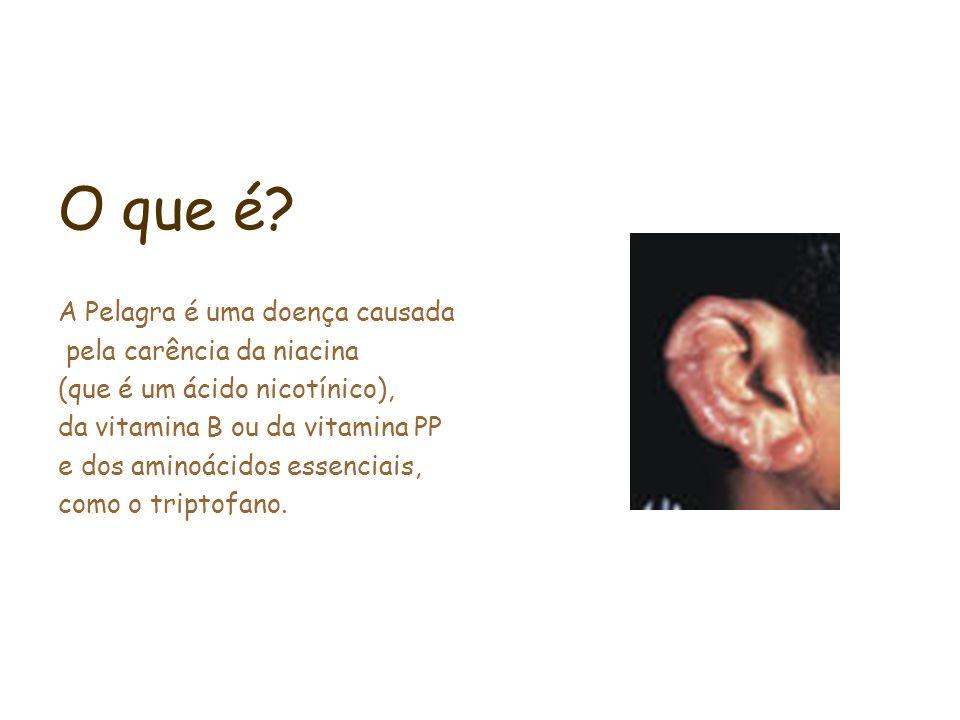 O que é? A Pelagra é uma doença causada pela carência da niacina (que é um ácido nicotínico), da vitamina B ou da vitamina PP e dos aminoácidos essenc