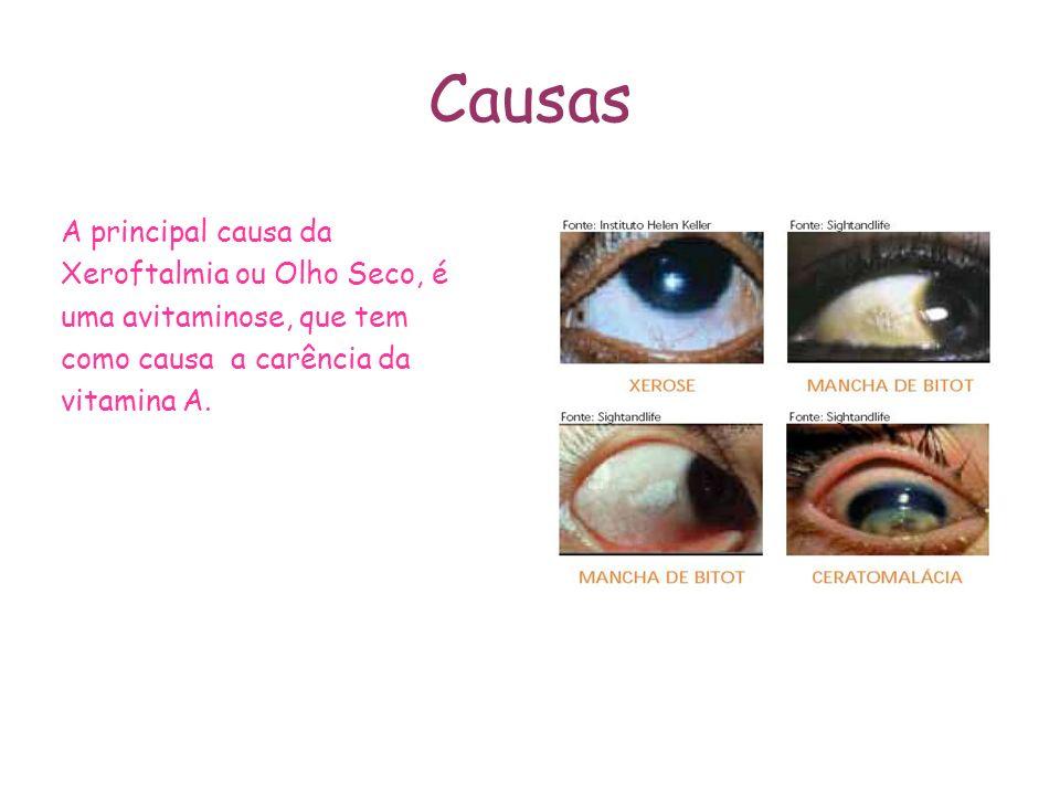 Causas A principal causa da Xeroftalmia ou Olho Seco, é uma avitaminose, que tem como causa a carência da vitamina A.