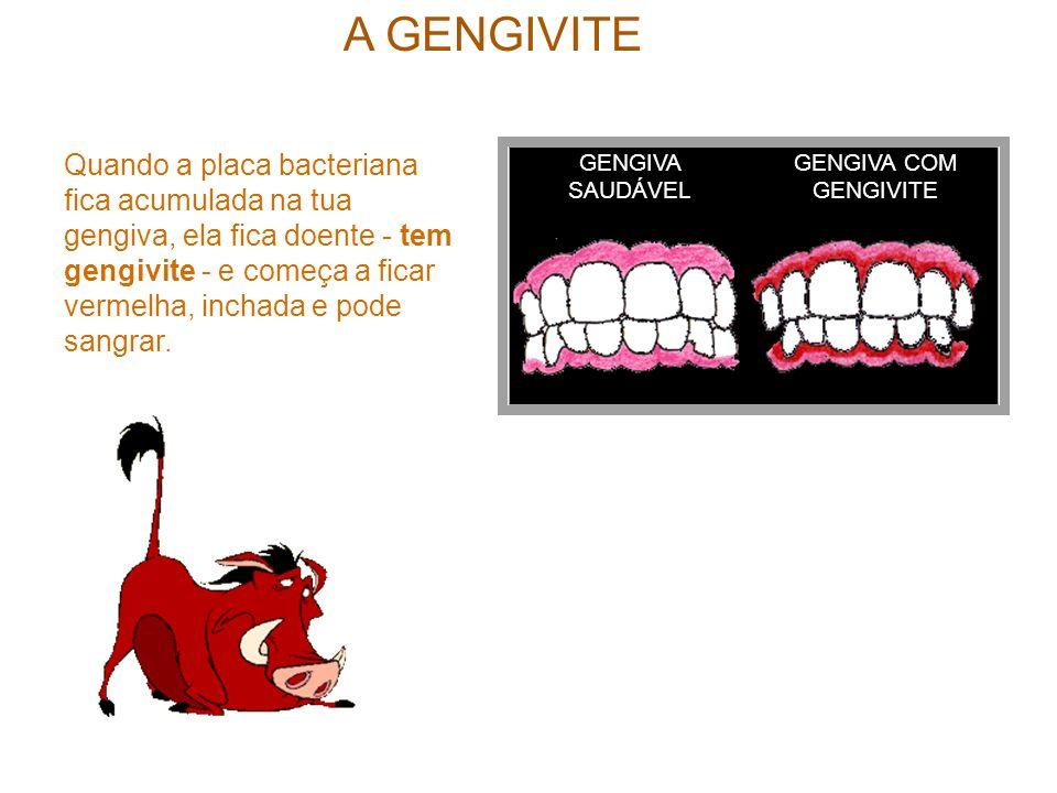 A GENGIVITE GENGIVA SAUDÁVEL GENGIVA COM GENGIVITE Quando a placa bacteriana fica acumulada na tua gengiva, ela fica doente - tem gengivite - e começa